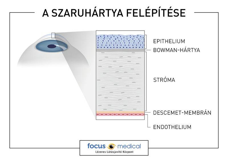 nem műtéti látáskorrekciós módszer