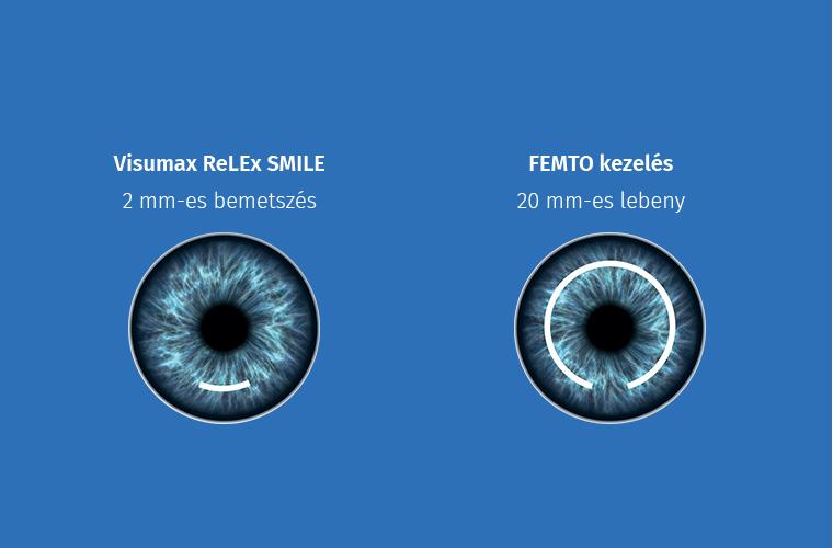 Miben különböznek egymástól a látáskorrekciós műtéti eljárások ?